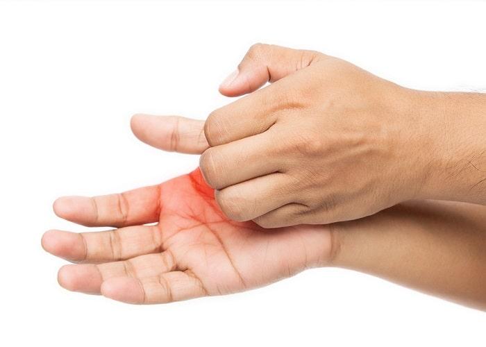 درمان اگزمای پوست دست با تمیز نگه داشتن پوست