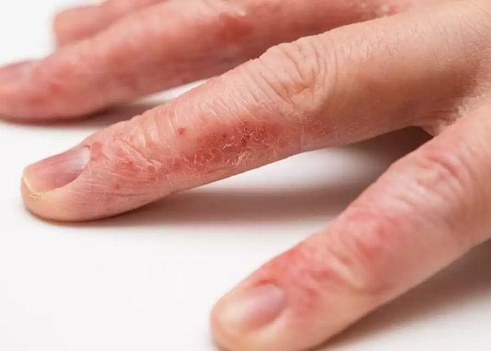 خشکی، لایهلایه و پوستهپوسته شدن، از علائم اگزما دست که نیاز به مراجعه پزشک است
