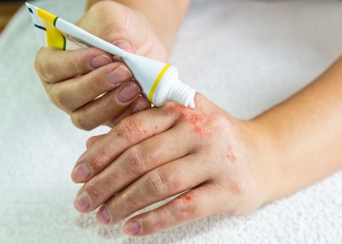 استفاده از پماد برای اگزمای پوستی