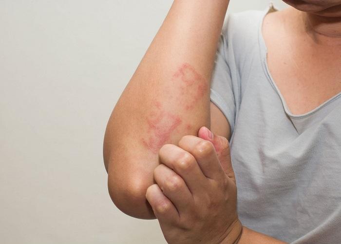 سوزش، خارش و قرمزی پوست، از علائم اگزما پوست می باشد