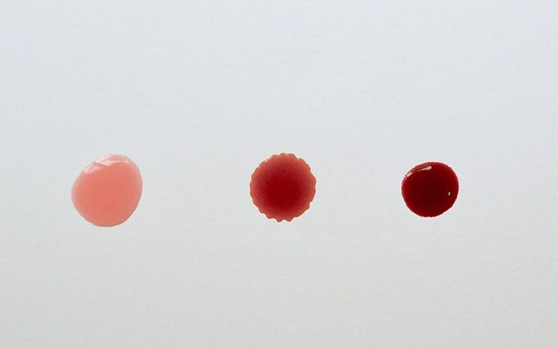 مشاهده لکه بینی یا خونریزی خفیف