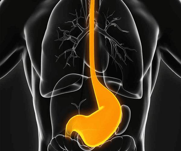 علائم ،عوامل خطرناک و درمان اسید معده